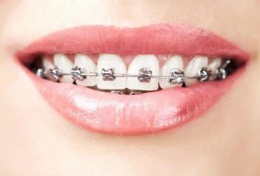 Non Extraction Orthodontics