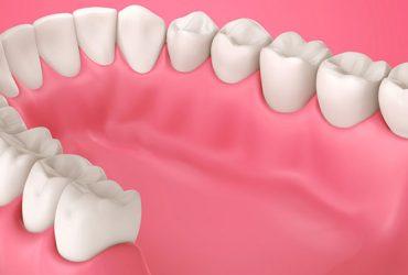 Periodontal Gum Treatment