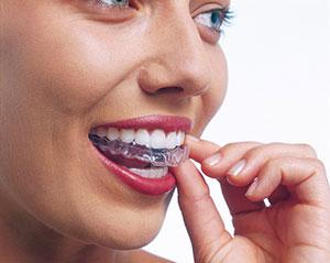 Invisalign – Dental Braces