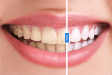 Cosmetic Smile Make overs