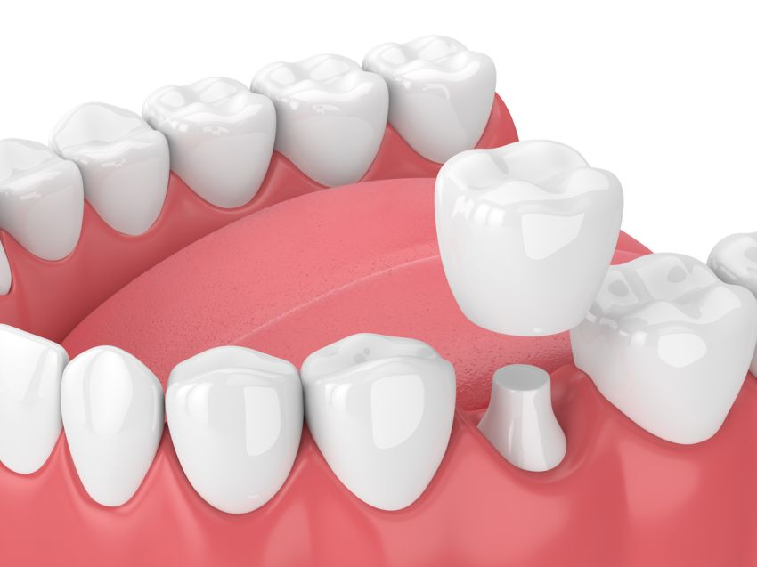 dental crowns berwick