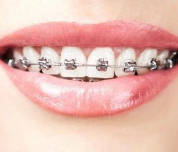 Non Extraction Orthodontics