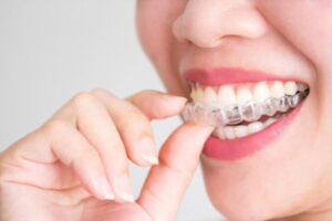 Benefits of Invisalign Braces