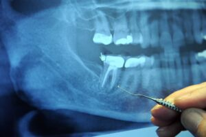 What Is The Difference Between Root Canal Treatment and Tooth Extraction?